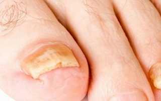 Утолщение ногтей на ногах не грибок. Диагностика и лечение утолщенного ногтя. Ногти на ногах стали толстые: что делать