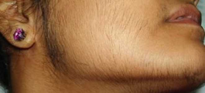 Об избыточном росте волос на женском теле — причины, диагностика, лечение. Средства для замедления роста волос
