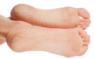 Трещины на пятках — лечение в домашних условиях. Причины и лечение трещин на пятках в домашних условиях