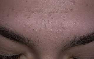 Черные точки на коже – все, что нужно о них знать. Черные точки на лице – причины появления и как от них избавиться