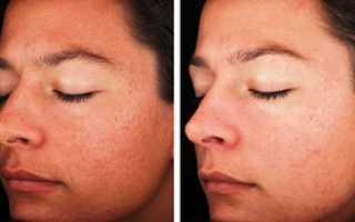 Лазерная шлифовка лица: отзывы и фото, до и после. Глубокая лазерная шлифовка морщин на лице. Шлифовка против пигментации