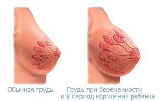 Почему и когда болит грудь при беременности. Начала болеть грудь? Причины, сроки и связь с беременностью