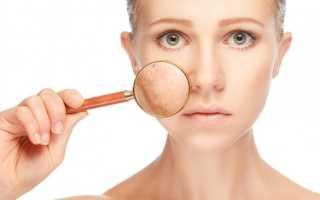 Почему у взрослого щеки постоянно красные. Что делать, если на лице появилось красное пятно и не проходит