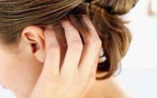 Шелушится кожа на левой руке. Причины шелушения кожи на руках. Способы лечения. На голове шелушится кожа: причины