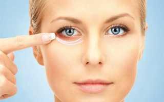 Как быстро убрать синяк под глазом — лечение кровоподтека. Как быстро убрать синяк под глазом народными способами