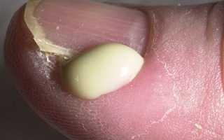 Воспаление под ногтем чем лечить. Под ногтем гной: что делать, каковы причины и симптомы подобного заболевания