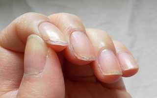 Почему слоятся ногти на руках и что делать для лечения в этом случае? Советы для тех, у кого сильно слоятся ногти