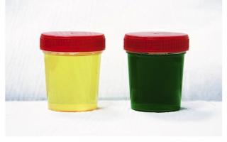 Зеленая моча: о чем свидетельствует изменение цвета? Причины возникновения зеленого оттенка мочи и методы лечения