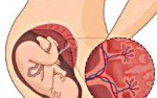Преждевременное половое созревание: причины, симптомы, лечение. Преждевременное старение плаценты: диагностика и лечение