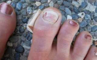 Почему слоится ноготь на большом пальце ноги. Отслоение ногтевой пластины от ложа на больших пальцах ног