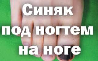 Как избавиться от боли в ушибленном пальце и убрать синяк под ногтем. Как вылечить синяк под ногтем большого пальца ноги
