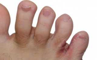 Как надо лечить грибок. Грибок на ногтях и между пальцами — в чем разница. Что нужно знать при лечении грибка ногтей