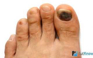 Как размягчить ногти на ногах? Народные советы. Как подстричь загрубевшие ногти. Домашние мази для размягчения ногтей
