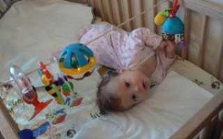 Ребенок 5 мес выгибает спину. Почему младенец выгибает спину и плачет. Повышение внутричерепного давления