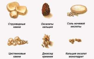 Народные средства для выведения камней из почек. Каким образом вывести камни из почек в домашних условиях