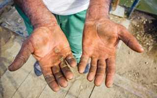 Внутренняя мозоль на пальце руки. Как удалить мозоли на руках – эффективные способы и современный подход