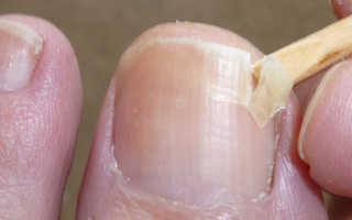 Почему отходят ногти на ногах причины. Что делать, если отходит ноготь на большом пальце ноги у детей и взрослых