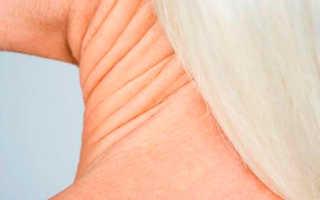 Как подтянуть кожу на шее и подбородке в домашних условиях. Быстро избавляемся от шероховатостей на шее