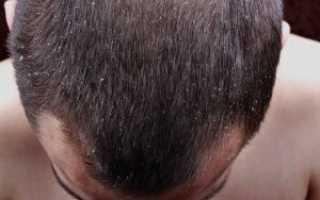 Причины появления перхоти на голове у женщин и самые эффективные способы лечения. Причины возникновения перхоти и её виды