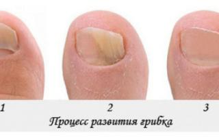 Как вылечить грибок ногтей на ногах в домашних условиях. Лечение грибка ногтей в домашних условиях: самый быстрый способ
