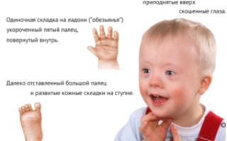 Поражение плода в зависимости от срока беременности. Генетические аномалии развития плода: причины, признаки и диагностика