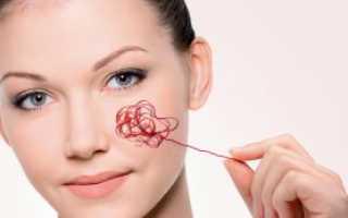 Мелкие сосуды на щеках как убрать. Сосудистая сетка на лице: основные симптомы появления и как избавиться