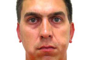 Как происходит удаление липомы на лице: лазерное и другие воздействия. Жировики на лице: фото, причины и лечение