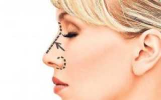 Как сделать длинный нос у девушки менее заметным. Длинный нос у девушки: что делать, фото до и после операций